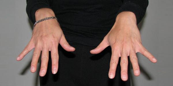 Finger Flick Stretch - Open